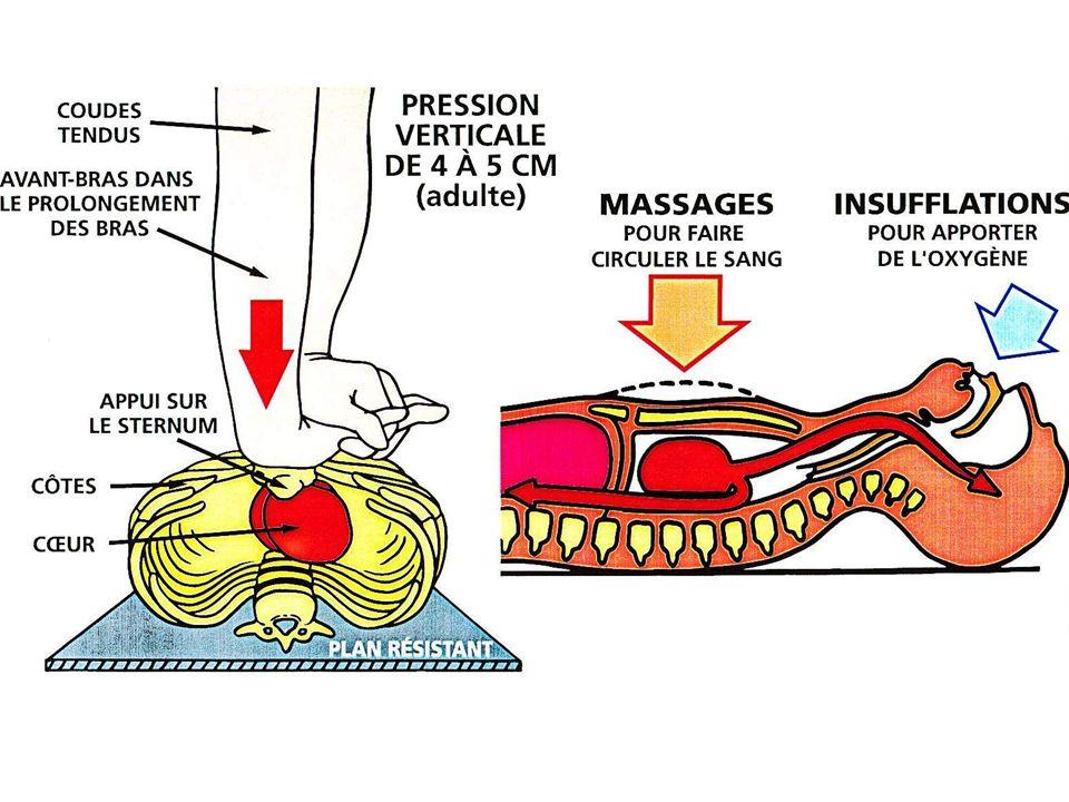 Si possible,comme chez ladulte avec des électrodes « enfant » Chez lenfant (1 à 8 ans) Sinon, une devant au milieu du thorax lautre derrière entre les omoplates