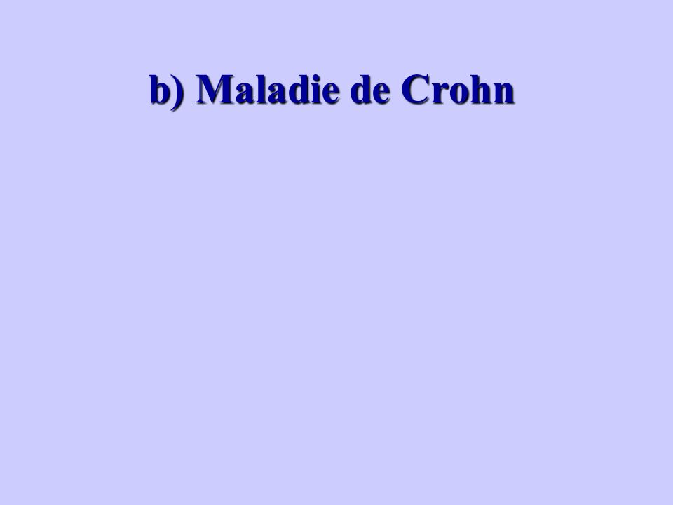 b) Maladie de Crohn b) Maladie de Crohn