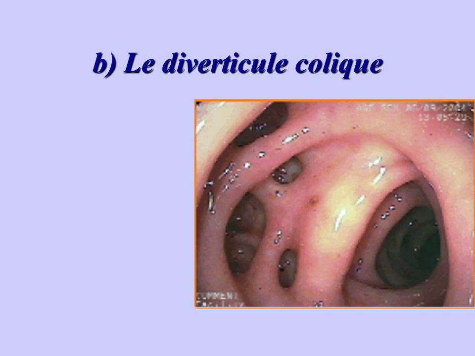 b) Le diverticule colique