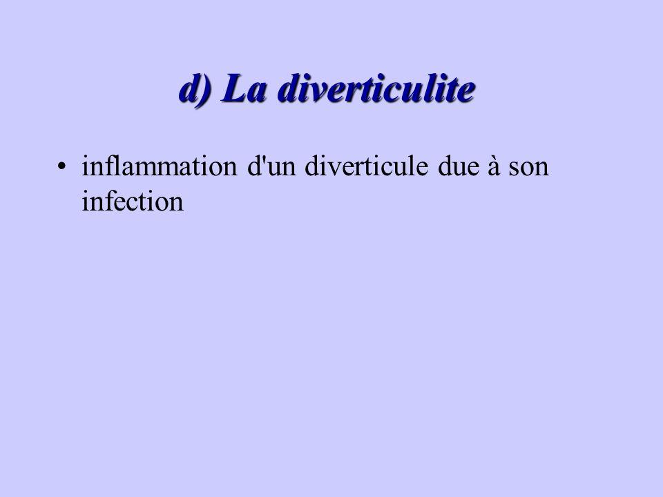 d) La diverticulite d) La diverticulite inflammation d'un diverticule due à son infection