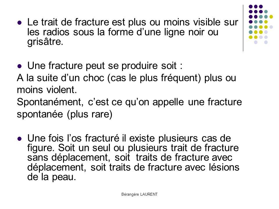 Bérangère LAURENT Les différents types de fractures : Fracture comminutive Fracture déplacée