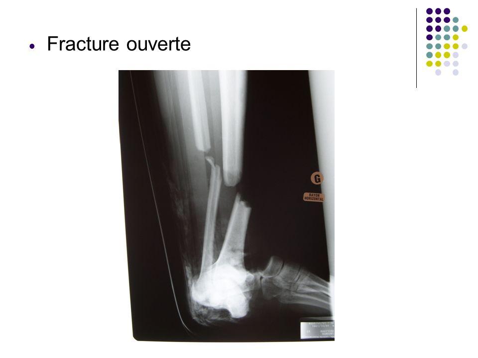 Bérangère LAURENT 2.Généralité sur le traitement Une fracture simple peut être traitée par plâtre ou résine ou par une fixation des os au moyens dune opération chirurgicale : lostéosynthèse Une fracture compliquée sera traitée le plus souvent par chirurgie : ostéosynthèse, prothèse
