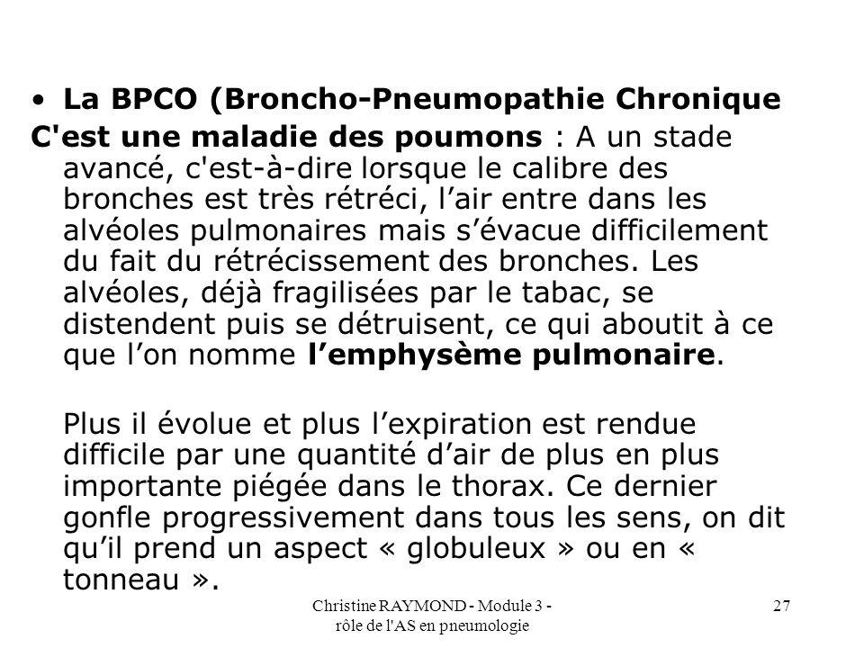 Christine RAYMOND - Module 3 - rôle de l AS en pneumologie 27 La BPCO (Broncho-Pneumopathie Chronique C est une maladie des poumons : A un stade avancé, c est-à-dire lorsque le calibre des bronches est très rétréci, lair entre dans les alvéoles pulmonaires mais sévacue difficilement du fait du rétrécissement des bronches.