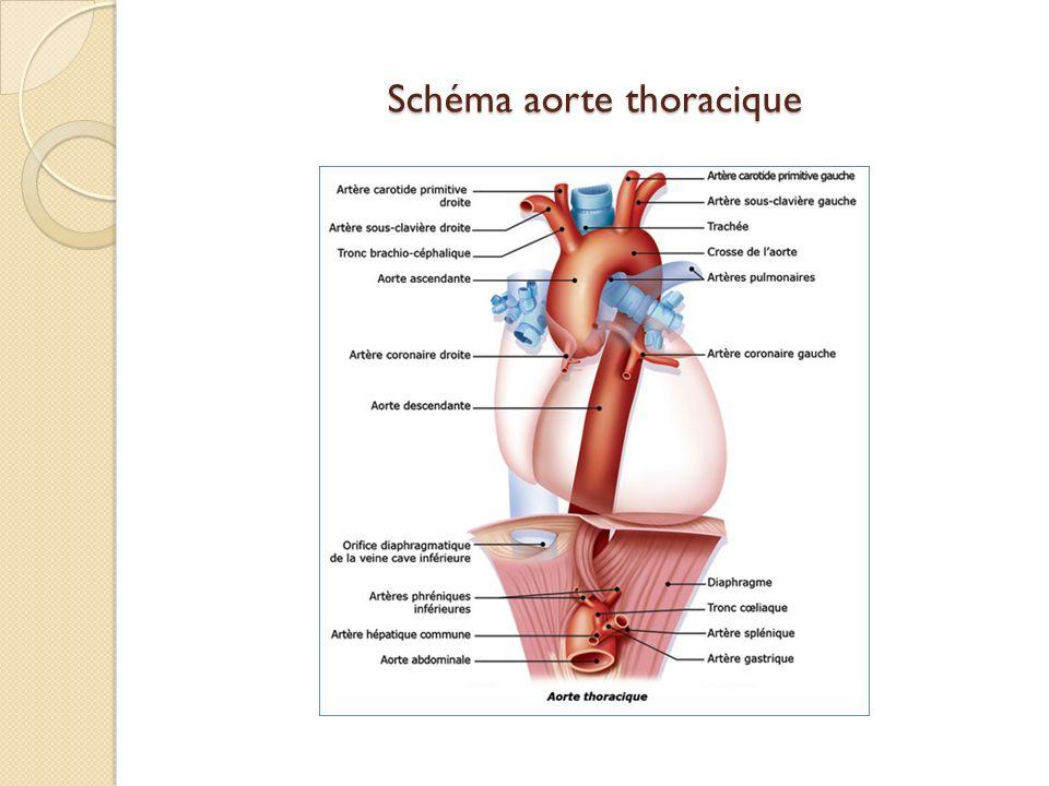 Schéma aorte thoracique