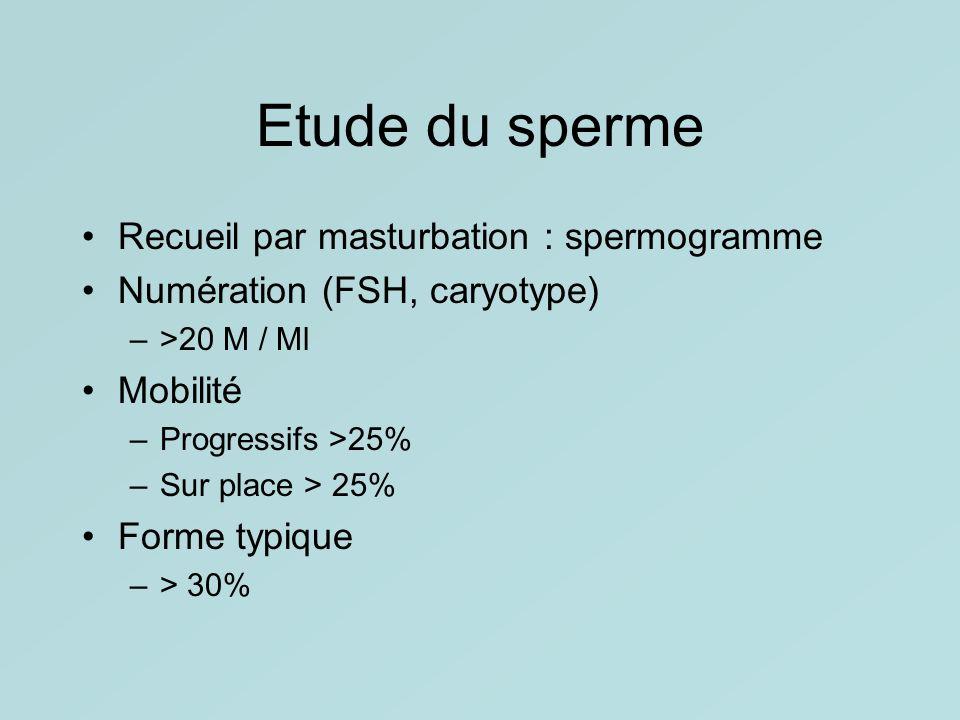 Etude du sperme Recueil par masturbation : spermogramme Numération (FSH, caryotype) –>20 M / Ml Mobilité –Progressifs >25% –Sur place > 25% Forme typi