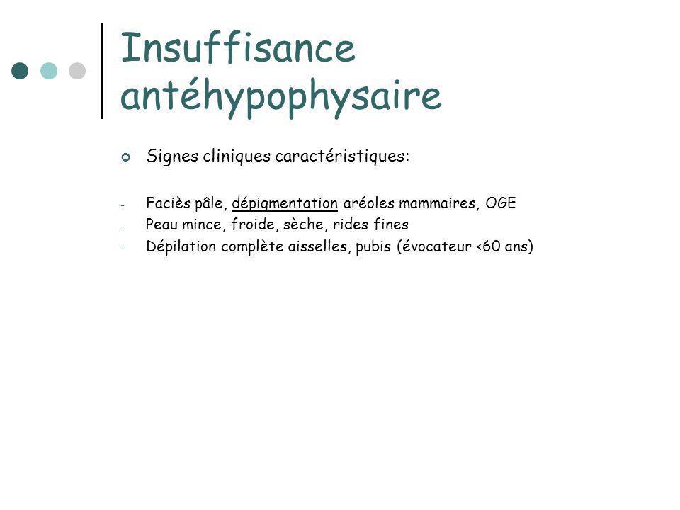 Insuffisance antéhypophysaire Signes cliniques caractéristiques: - Faciès pâle, dépigmentation aréoles mammaires, OGE - Peau mince, froide, sèche, rid