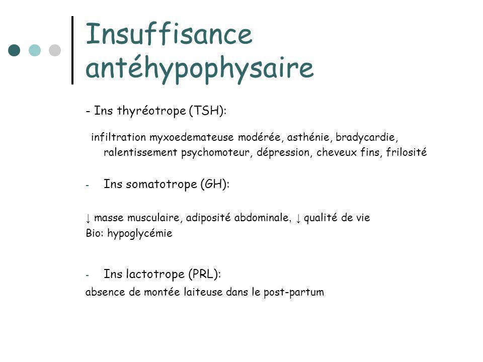 Insuffisance antéhypophysaire - Ins thyréotrope (TSH): infiltration myxoedemateuse modérée, asthénie, bradycardie, ralentissement psychomoteur, dépres
