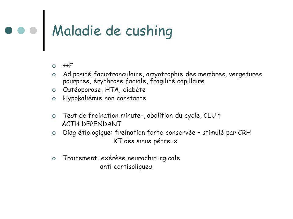 Maladie de cushing ++F Adiposité faciotronculaire, amyotrophie des membres, vergetures pourpres, érythrose faciale, fragilité capillaire Ostéoporose,