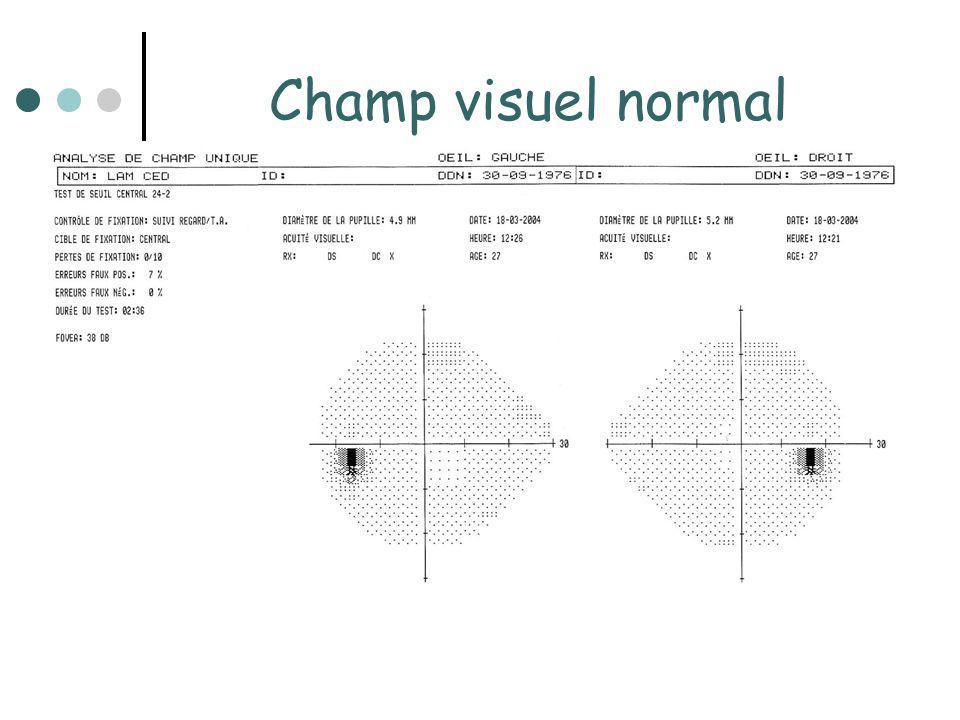Insuffisance antéhypophysaire - Déficit gonadotrope: E2 normale ou basse Testo normale ou basse FSH, LH basses ou anormalement normales - Déficit somatotrope: Test de stimulation: hypoglycémie insulinique, GHRH arginine GH, IGF1 basses - Déficit lactotrope: PRL svt normale Atteinte associée de la post-hypophyse avec diabète insipide = panhypopuituitarisme: souvent après chirurgie hypophysaire