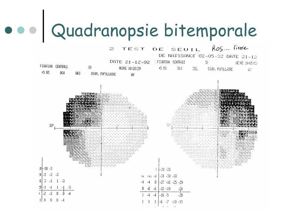 Hémianopsie bitemporale