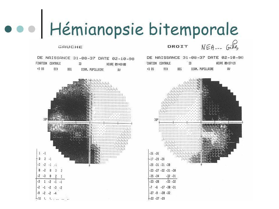 Insuffisance antéhypophysaire = conséquence du déficit dune ou plusieurs ou toutes hormones hypophysaires Secondaire à une atteinte de lhypophyse ou à un déficit des hormones hypothalamiques qui stimulent la libération des hormones hypophysaires Si destruction de la glande par une tumeur hypersecrétante: association de signes dhypersecrétion et dIAH Risques à long terme: Hypoglycémie, collapsus, coma hypopuituitaire