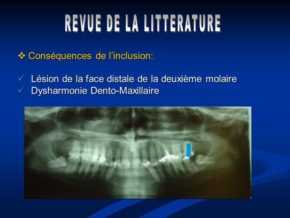 Conséquences de linclusion: Conséquences de linclusion: Lésion de la face distale de la deuxième molaire Lésion de la face distale de la deuxième mola