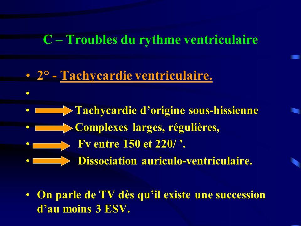 C – Troubles du rythme ventriculaire 2° - Tachycardie ventriculaire. Tachycardie dorigine sous-hissienne Complexes larges, régulières, Fv entre 150 et