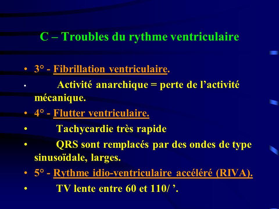 C – Troubles du rythme ventriculaire 3° - Fibrillation ventriculaire. Activité anarchique = perte de lactivité mécanique. 4° - Flutter ventriculaire.