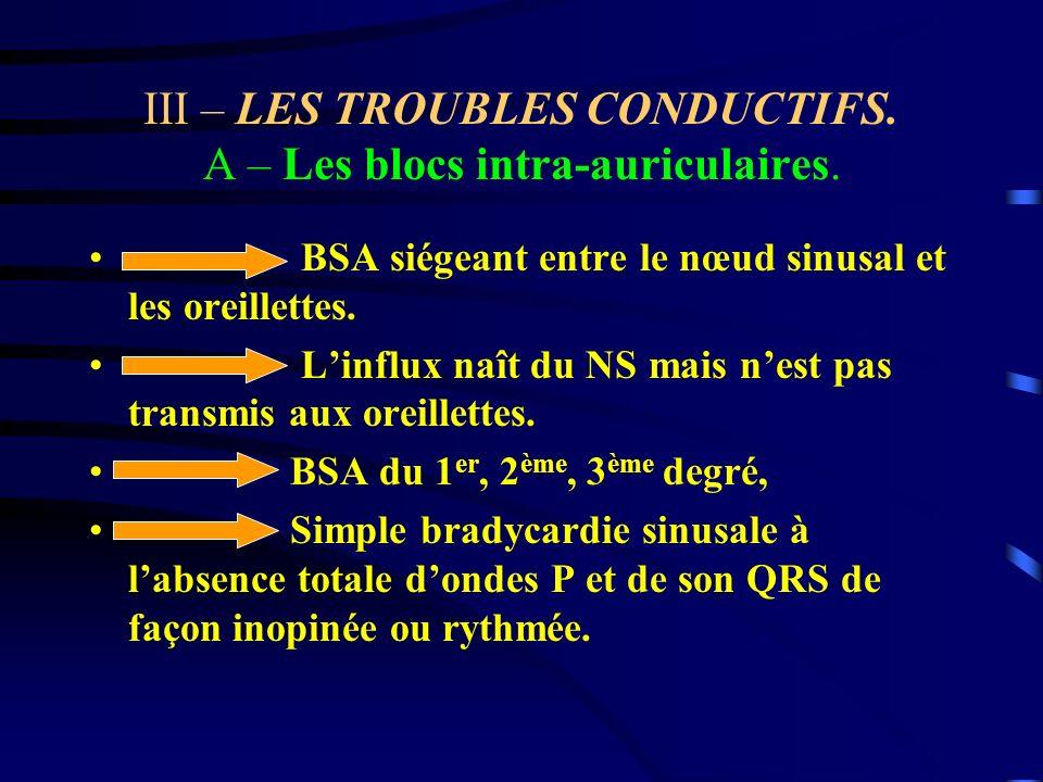 III – LES TROUBLES CONDUCTIFS. A – Les blocs intra-auriculaires. BSA siégeant entre le nœud sinusal et les oreillettes. Linflux naît du NS mais nest p