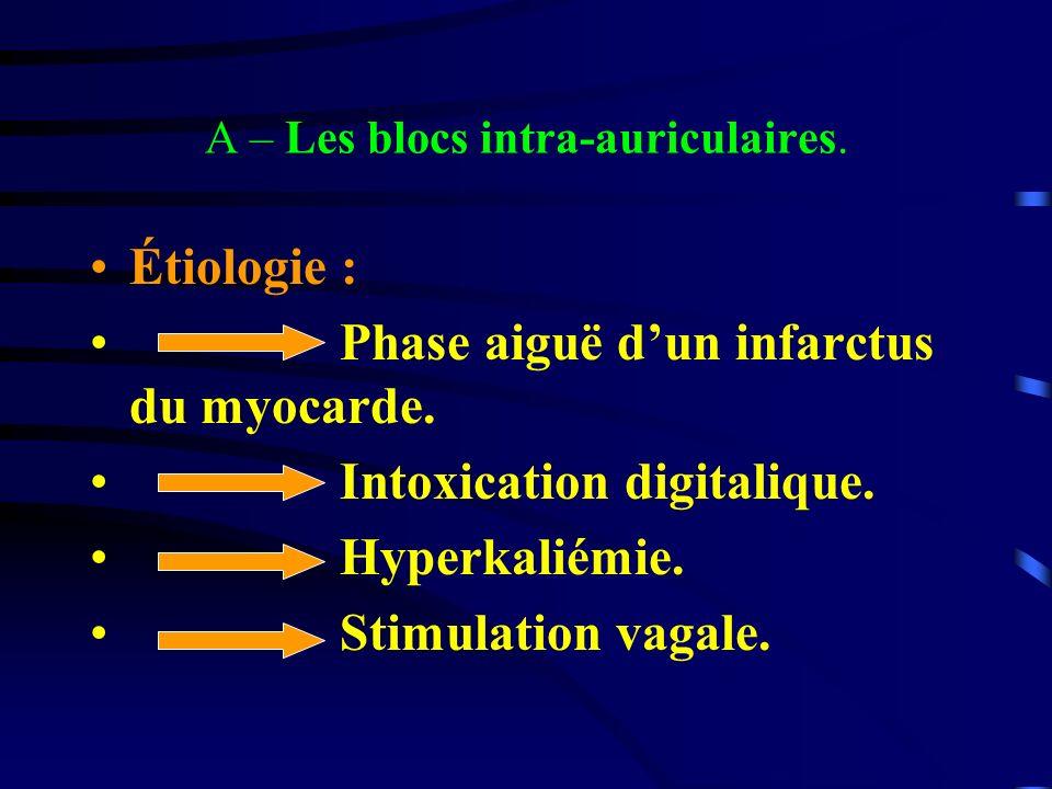 A – Les blocs intra-auriculaires. Étiologie : Phase aiguë dun infarctus du myocarde. Intoxication digitalique. Hyperkaliémie. Stimulation vagale.