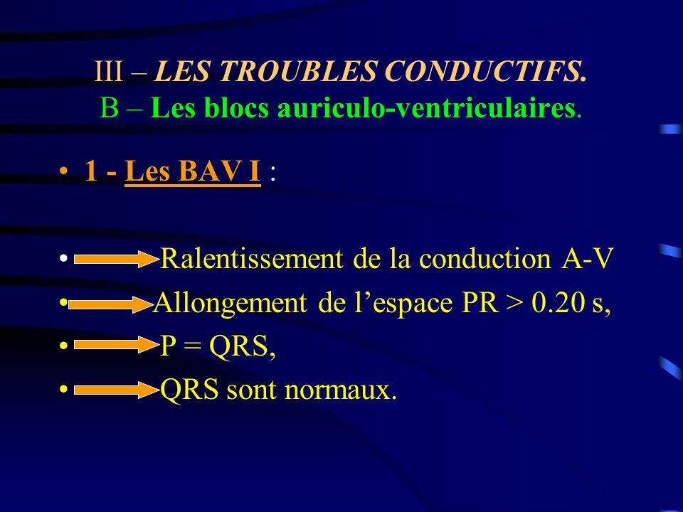 III – LES TROUBLES CONDUCTIFS. B – Les blocs auriculo-ventriculaires. 1 - Les BAV I : Ralentissement de la conduction A-V Allongement de lespace PR >