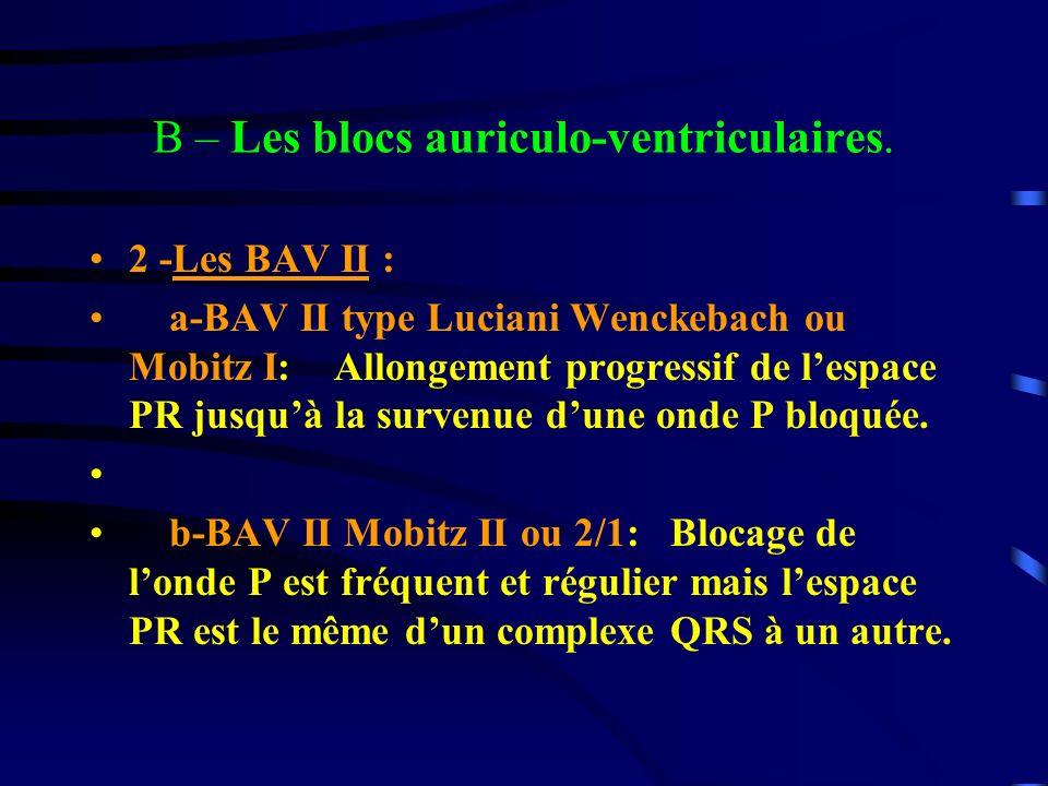 B – Les blocs auriculo-ventriculaires. 2 -Les BAV II : a-BAV II type Luciani Wenckebach ou Mobitz I: Allongement progressif de lespace PR jusquà la su