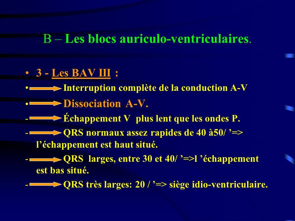B – Les blocs auriculo-ventriculaires. 3 - Les BAV III : Interruption complète de la conduction A-V Dissociation A-V. - Échappement V plus lent que le