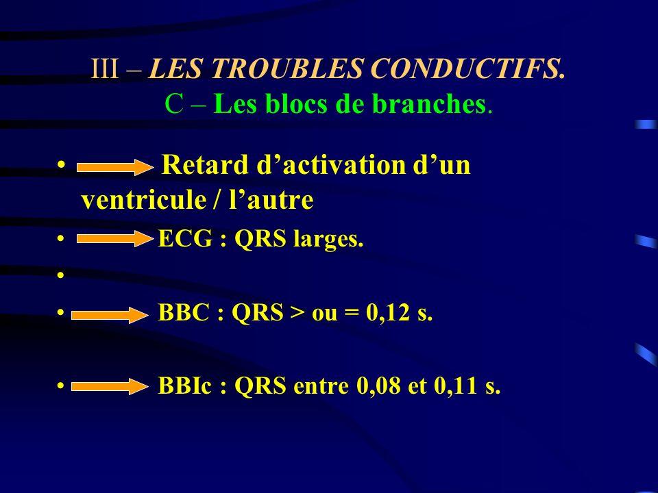 III – LES TROUBLES CONDUCTIFS. C – Les blocs de branches. Retard dactivation dun ventricule / lautre ECG : QRS larges. BBC : QRS > ou = 0,12 s. BBIc :