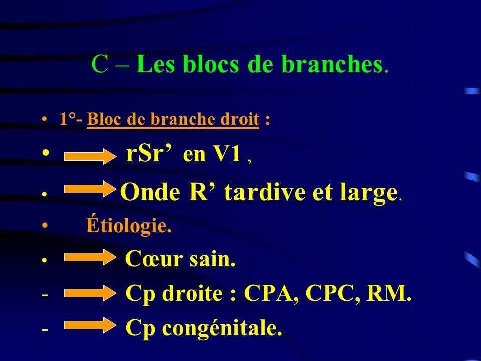 C – Les blocs de branches. 1°- Bloc de branche droit : rSr en V1, Onde R tardive et large. Étiologie. Cœur sain. - Cp droite : CPA, CPC, RM. - Cp cong