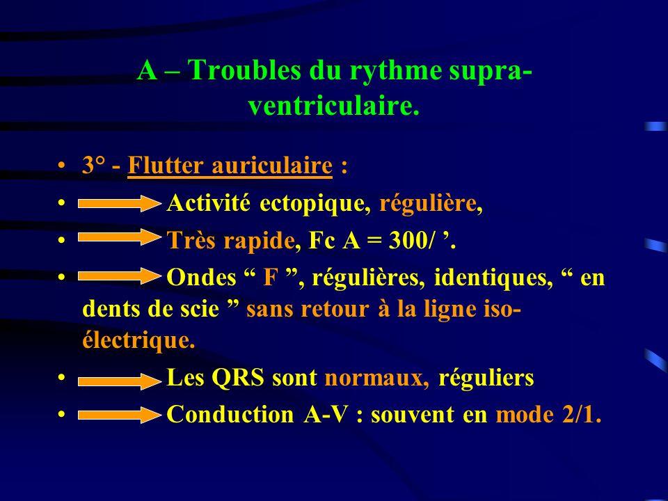 A – Troubles du rythme supra- ventriculaire. 3° - Flutter auriculaire : Activité ectopique, régulière, Très rapide, Fc A = 300/. Ondes F, régulières,
