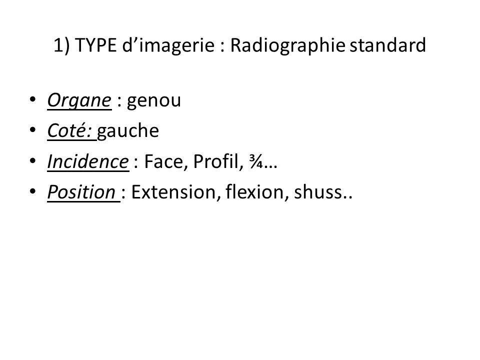1) TYPE dimagerie : Radiographie standard Organe : genou Coté: gauche Incidence : Face, Profil, ¾… Position : Extension, flexion, shuss..