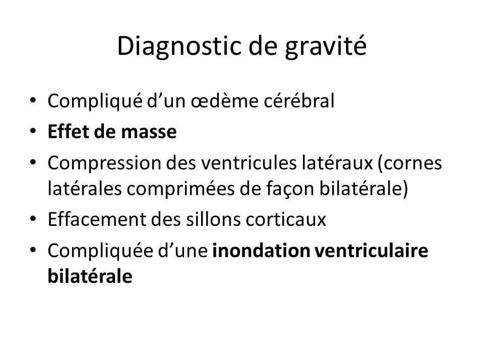Diagnostic de gravité Compliqué dun œdème cérébral Effet de masse Compression des ventricules latéraux (cornes latérales comprimées de façon bilatéral