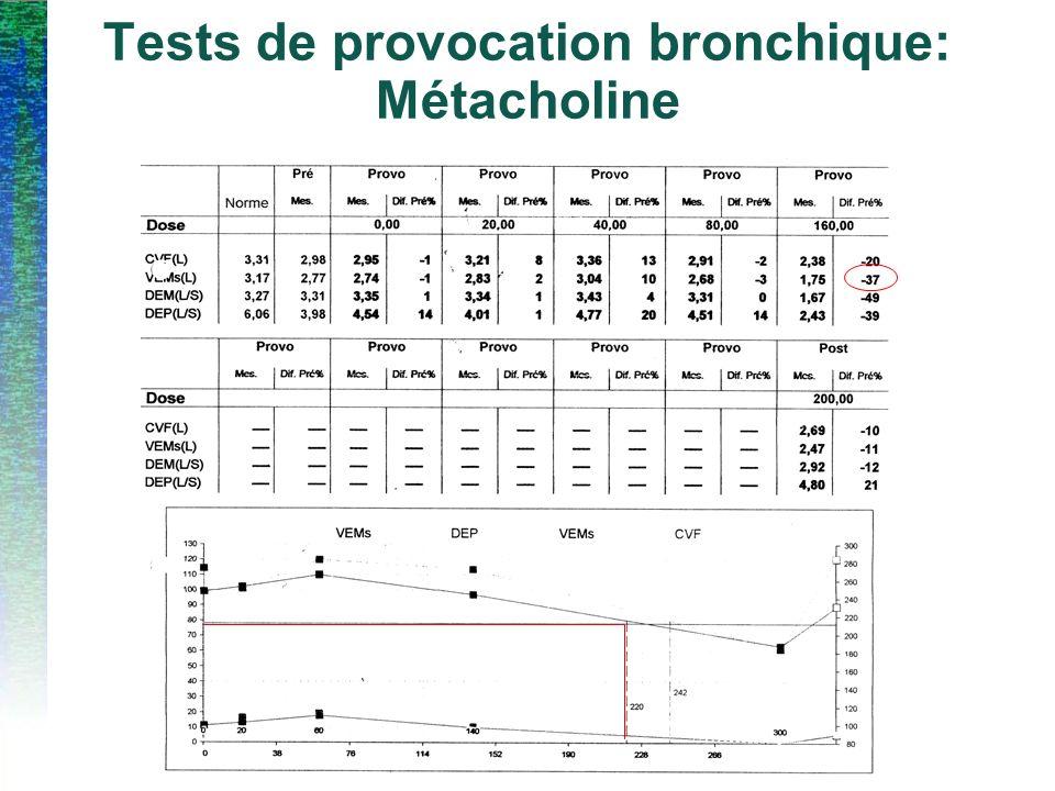 Tests de provocation bronchique: Métacholine