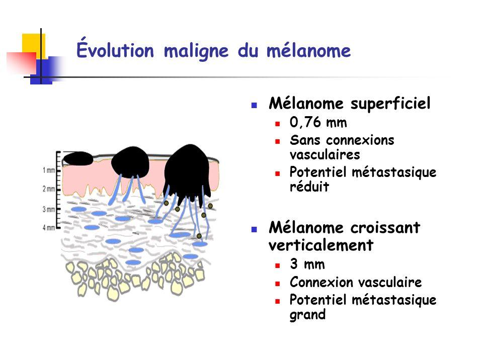 Évolution maligne du mélanome Mélanome superficiel 0,76 mm Sans connexions vasculaires Potentiel métastasique réduit Mélanome croissant verticalement