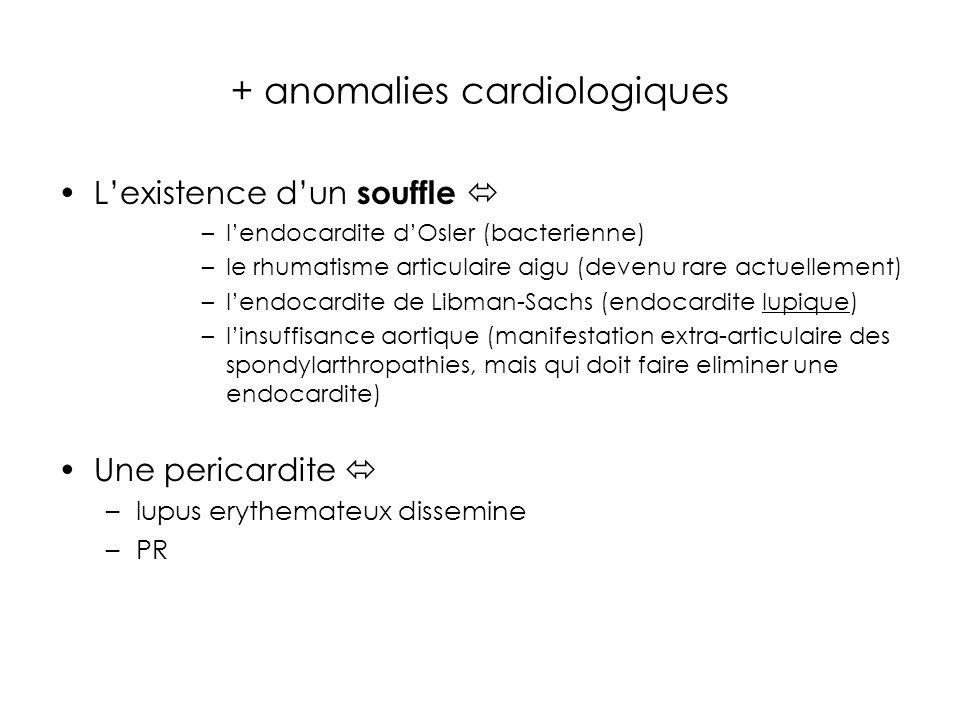 + anomalies cardiologiques Lexistence dun souffle –lendocardite dOsler (bacterienne) –le rhumatisme articulaire aigu (devenu rare actuellement) –lendocardite de Libman-Sachs (endocardite lupique) –linsuffisance aortique (manifestation extra-articulaire des spondylarthropathies, mais qui doit faire eliminer une endocardite) Une pericardite –lupus erythemateux dissemine –PR