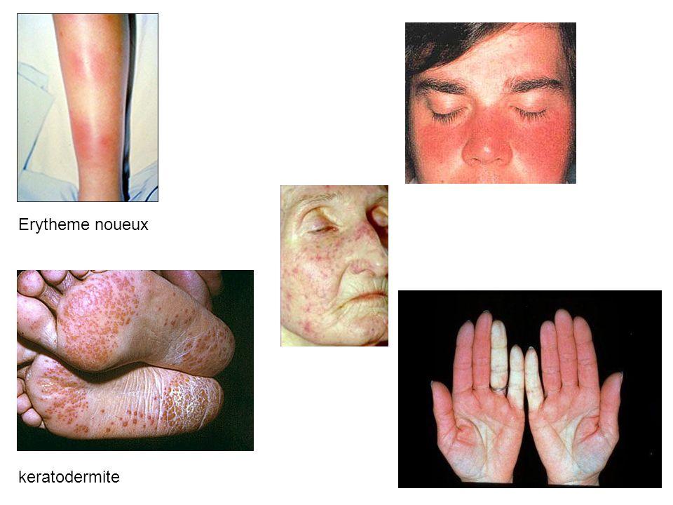 Erytheme noueux keratodermite