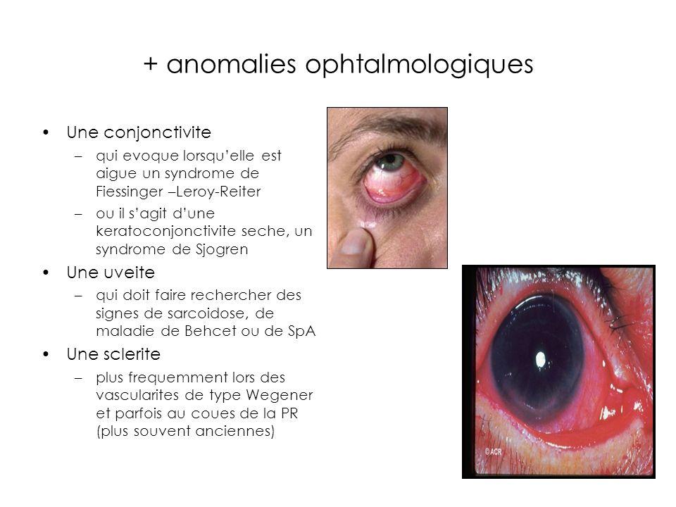 + anomalies ophtalmologiques Une conjonctivite –qui evoque lorsquelle est aigue un syndrome de Fiessinger –Leroy-Reiter –ou il sagit dune keratoconjonctivite seche, un syndrome de Sjogren Une uveite –qui doit faire rechercher des signes de sarcoidose, de maladie de Behcet ou de SpA Une sclerite –plus frequemment lors des vascularites de type Wegener et parfois au coues de la PR (plus souvent anciennes)
