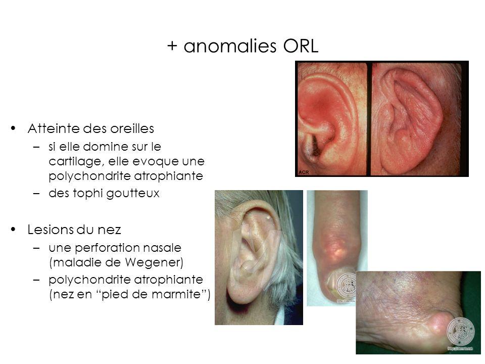 + anomalies ORL Atteinte des oreilles –si elle domine sur le cartilage, elle evoque une polychondrite atrophiante –des tophi goutteux Lesions du nez –une perforation nasale (maladie de Wegener) –polychondrite atrophiante (nez en pied de marmite)