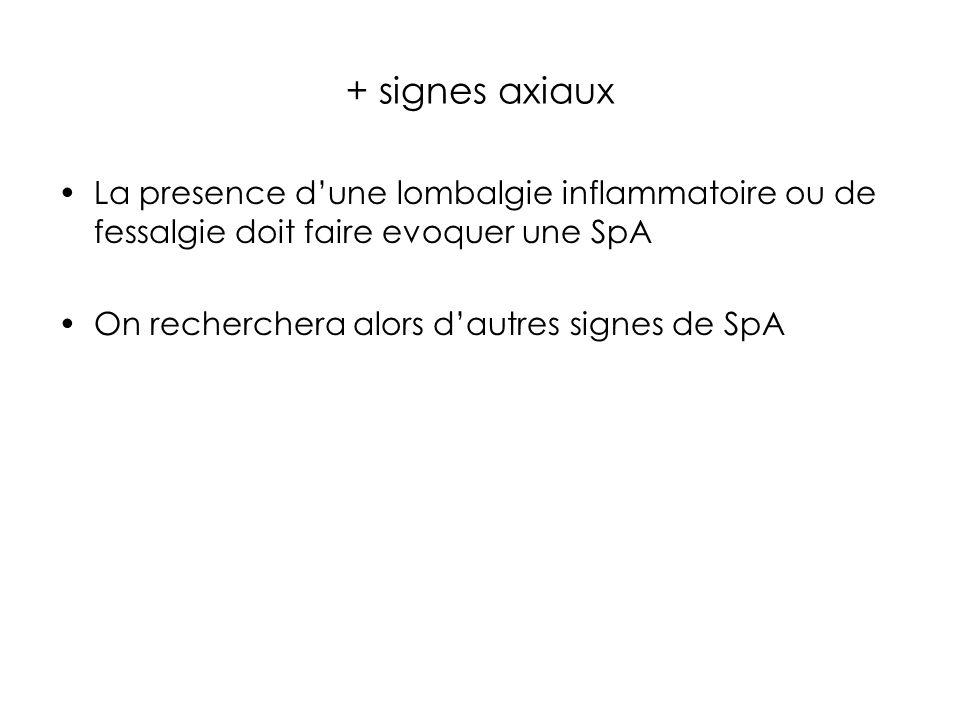 + signes axiaux La presence dune lombalgie inflammatoire ou de fessalgie doit faire evoquer une SpA On recherchera alors dautres signes de SpA
