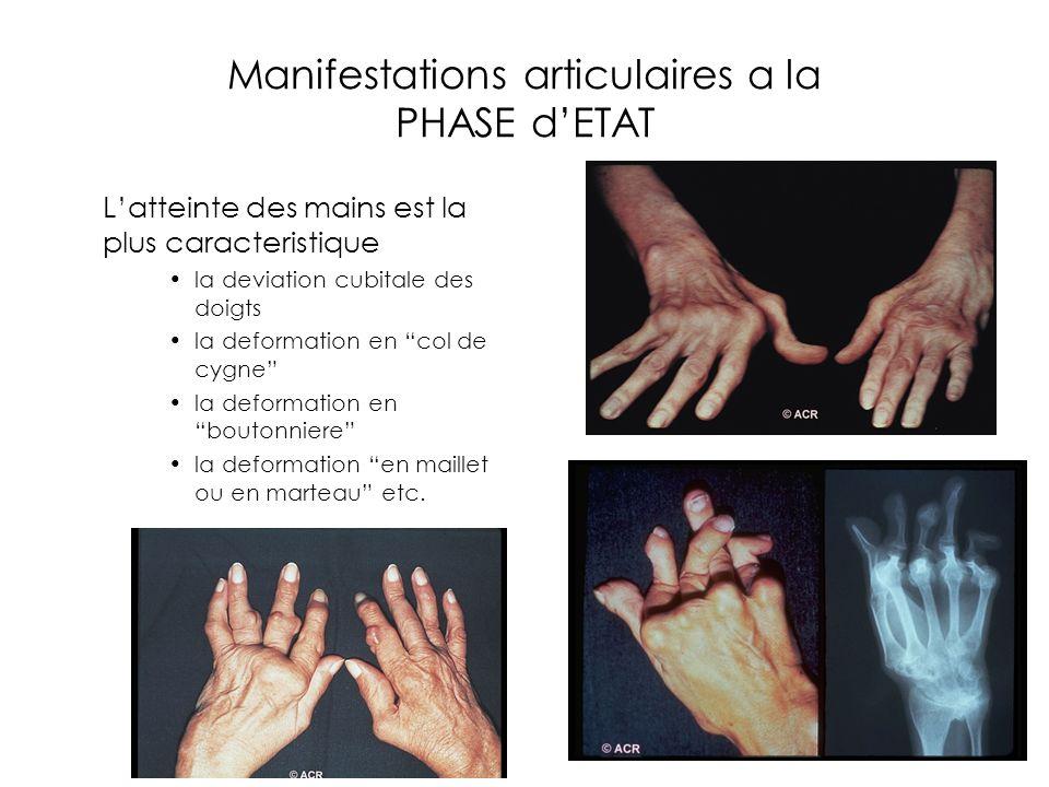 Manifestations articulaires a la PHASE dETAT Latteinte des mains est la plus caracteristique la deviation cubitale des doigts la deformation en col de