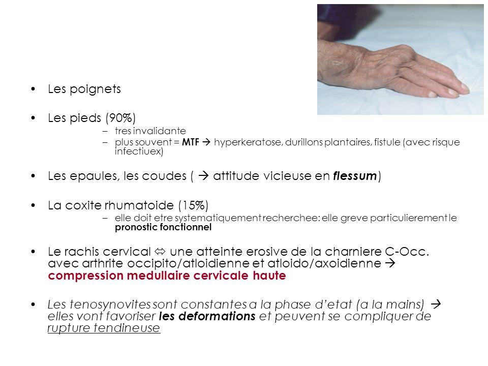 Les poignets Les pieds (90%) –tres invalidante –plus souvent = MTF hyperkeratose, durillons plantaires, fistule (avec risque infectiuex) Les epaules, les coudes ( attitude vicieuse en flessum ) La coxite rhumatoide (15%) –elle doit etre systematiquement recherchee: elle greve particulierement le pronostic fonctionnel Le rachis cervical une atteinte erosive de la charniere C-Occ.