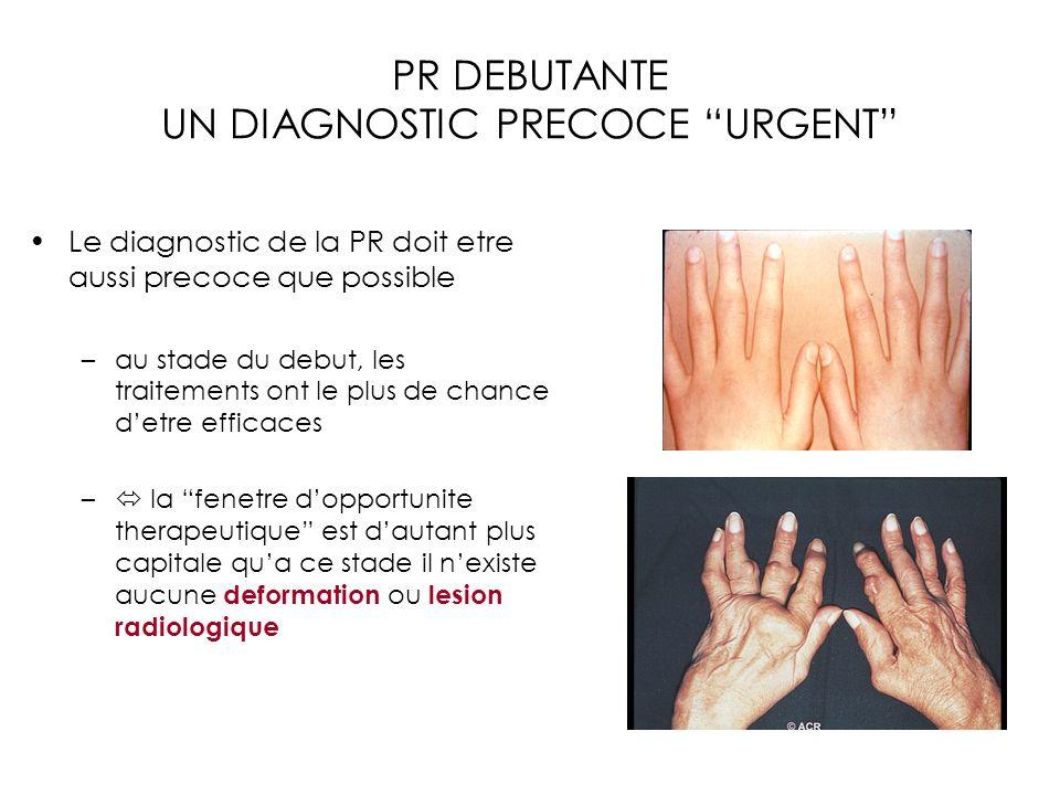 PR DEBUTANTE UN DIAGNOSTIC PRECOCE URGENT Le diagnostic de la PR doit etre aussi precoce que possible –au stade du debut, les traitements ont le plus