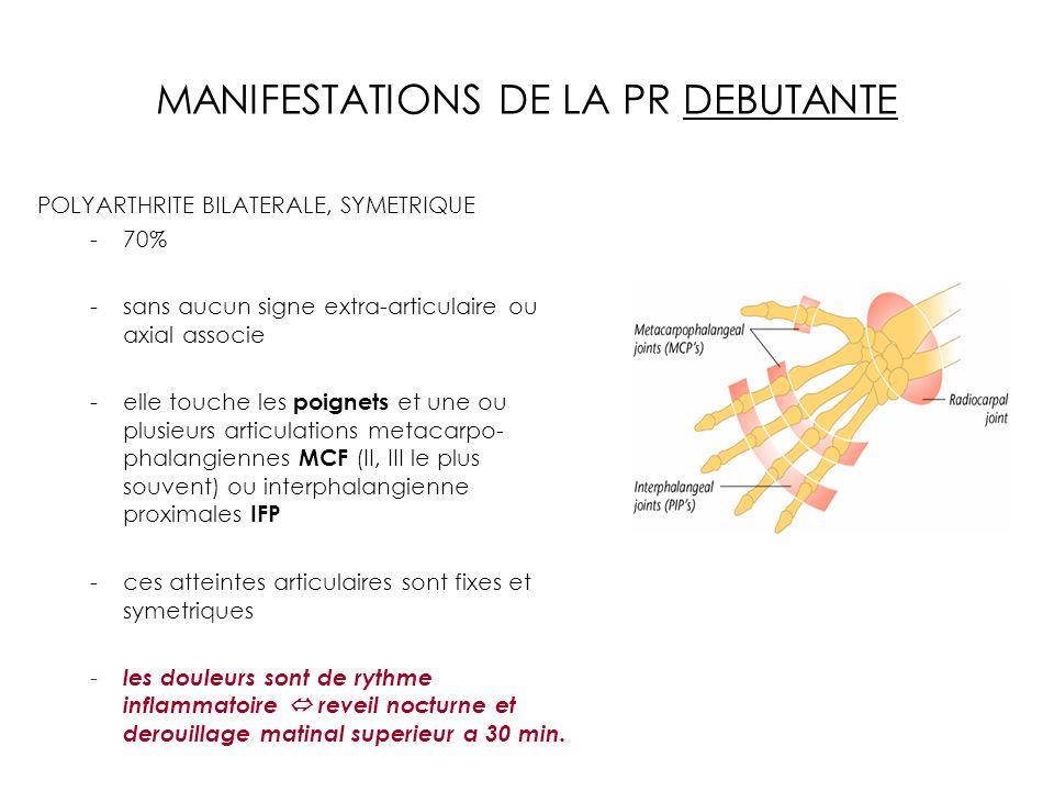 MANIFESTATIONS DE LA PR DEBUTANTE POLYARTHRITE BILATERALE, SYMETRIQUE -70% -sans aucun signe extra-articulaire ou axial associe -elle touche les poign