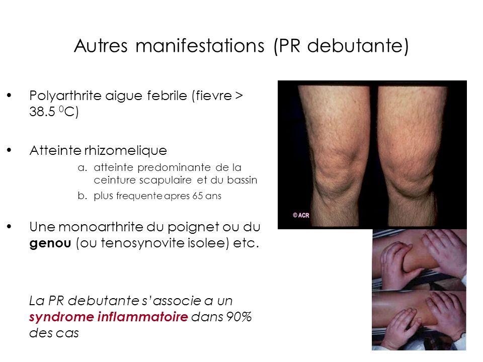 Autres manifestations (PR debutante) Polyarthrite aigue febrile (fievre > 38.5 0 C) Atteinte rhizomelique a.atteinte predominante de la ceinture scapu