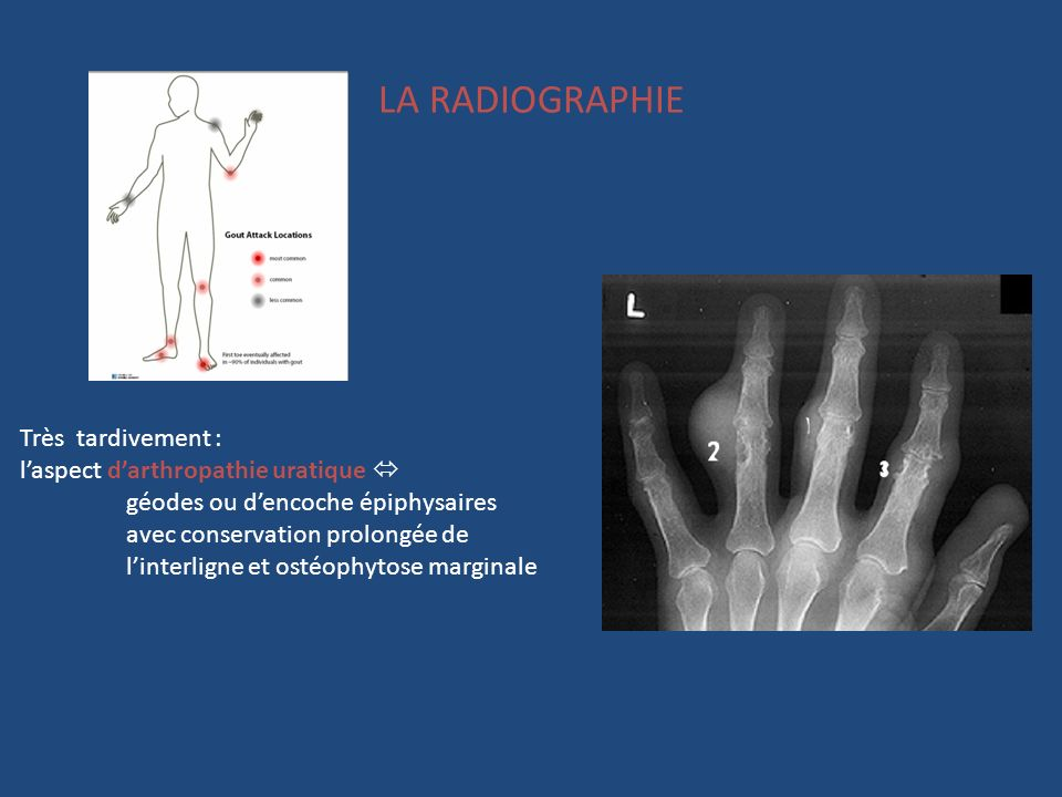 LA RADIOGRAPHIE Très tardivement : laspect darthropathie uratique géodes ou dencoche épiphysaires avec conservation prolongée de linterligne et ostéop