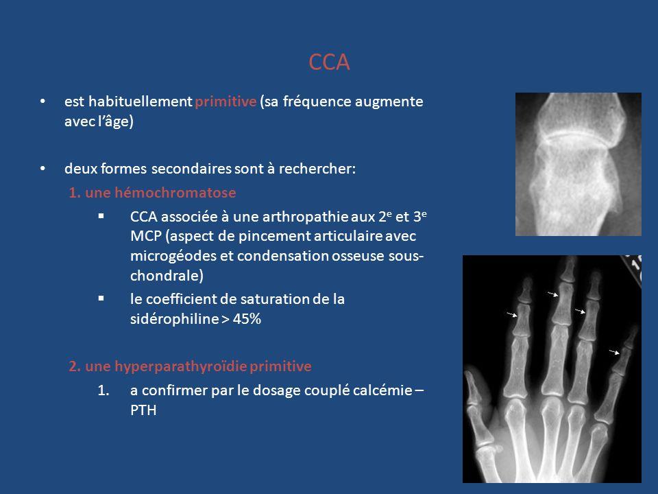 CCA est habituellement primitive (sa fréquence augmente avec lâge) deux formes secondaires sont à rechercher: 1. une hémochromatose CCA associée à une