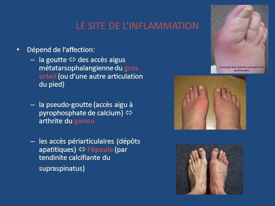 LE SITE DE LINFLAMMATION Dépend de laffection: – la goutte des accès aigus métatarsophalangienne du gros orteil (ou dune autre articulation du pied) –
