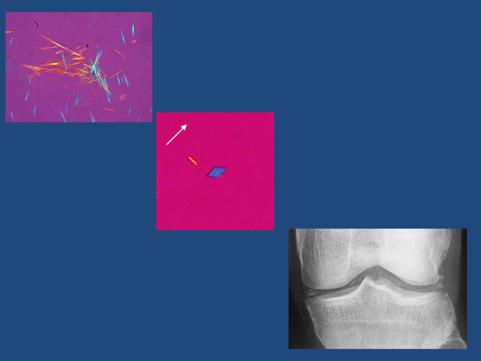 GOUTTE résulte dune hyperuricémie chronique > 7 mg/dl seuil de saturation du plasma en urate de sodium les cristaux dUMS sont responsables a.daccès articulaires aigus = la goutte aiguë et b.de la constitution de dépôts tissulaires dUMS les tophus goutteux (intra-articulaires, péri-, osseux, cutanés) = larthropatie chronique