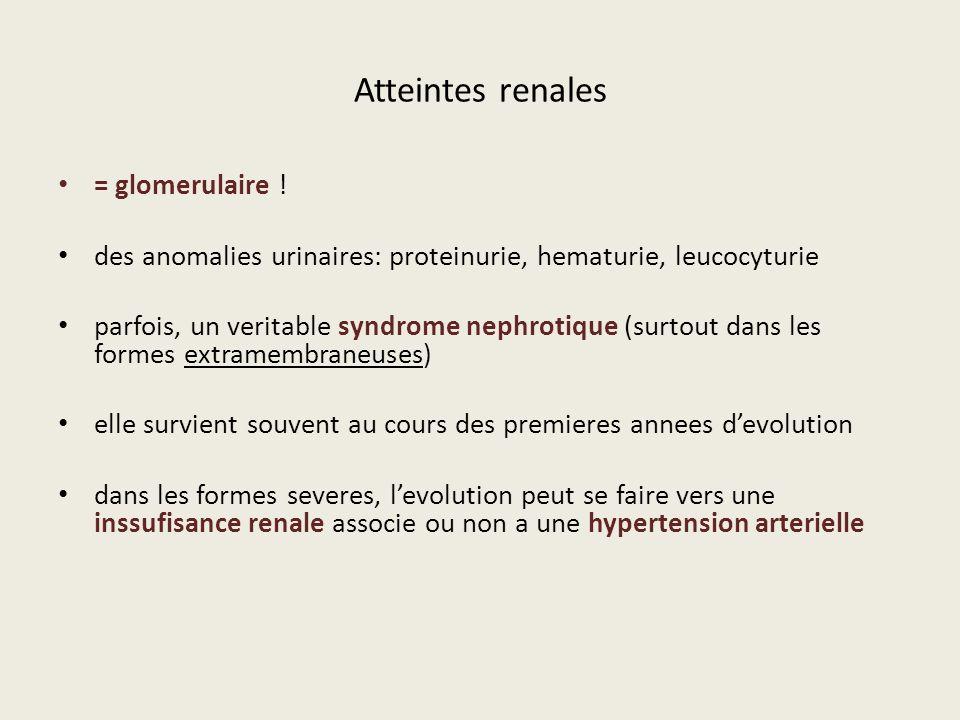Atteintes renales = glomerulaire ! des anomalies urinaires: proteinurie, hematurie, leucocyturie parfois, un veritable syndrome nephrotique (surtout d