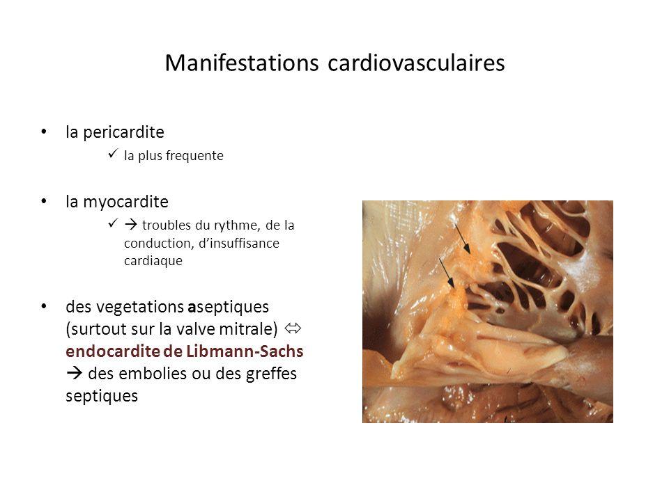Manifestations cardiovasculaires la pericardite la plus frequente la myocardite troubles du rythme, de la conduction, dinsuffisance cardiaque des vege