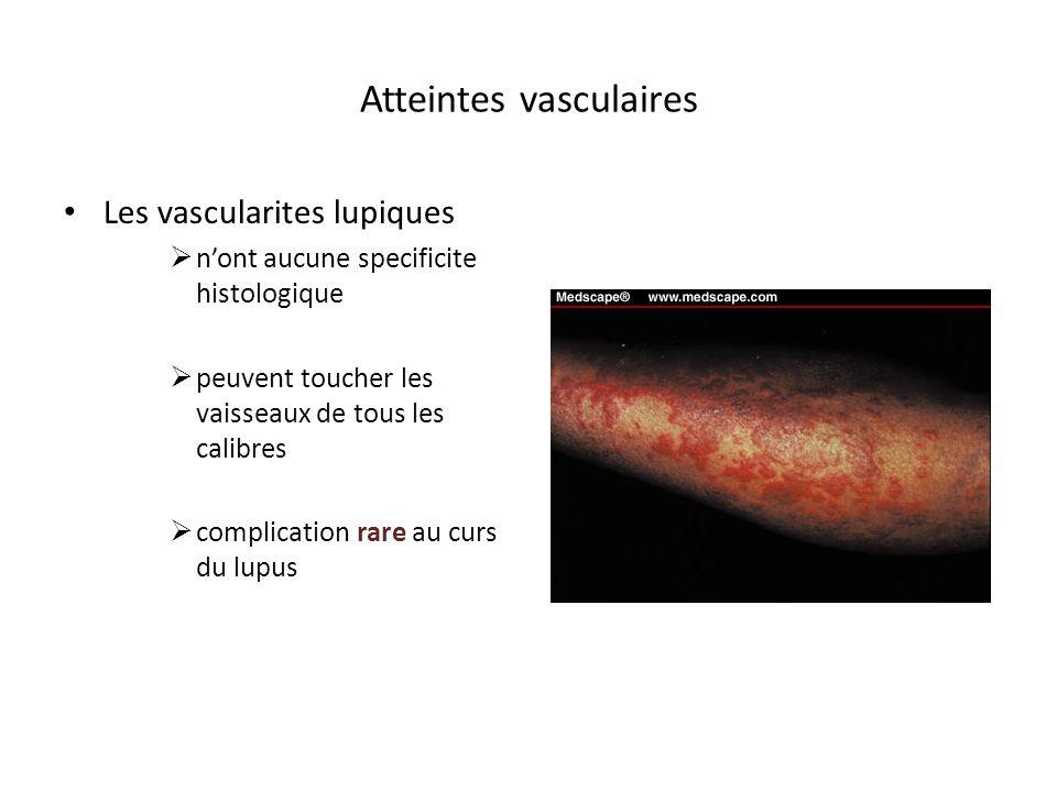 Atteintes vasculaires Les vascularites lupiques nont aucune specificite histologique peuvent toucher les vaisseaux de tous les calibres complication r