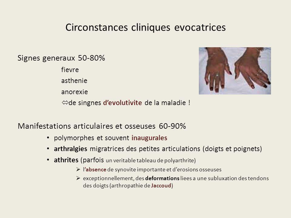 Circonstances cliniques evocatrices Signes generaux 50-80% fievre asthenie anorexie de singnes devolutivite de la maladie ! Manifestations articulaire