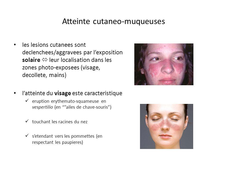 Atteinte cutaneo-muqueuses les lesions cutanees sont declenchees/aggravees par lexposition solaire leur localisation dans les zones photo-exposees (vi