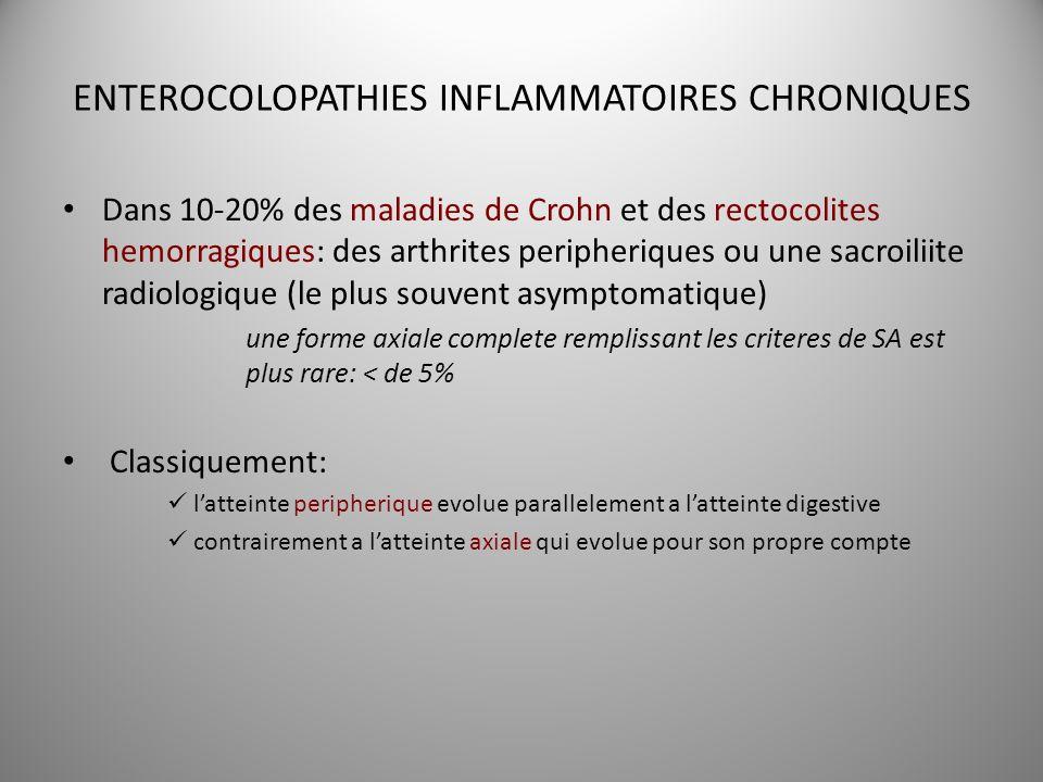 ENTEROCOLOPATHIES INFLAMMATOIRES CHRONIQUES Dans 10-20% des maladies de Crohn et des rectocolites hemorragiques: des arthrites peripheriques ou une sa